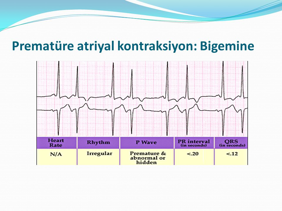 Prematüre atriyal kontraksiyon: Bigemine