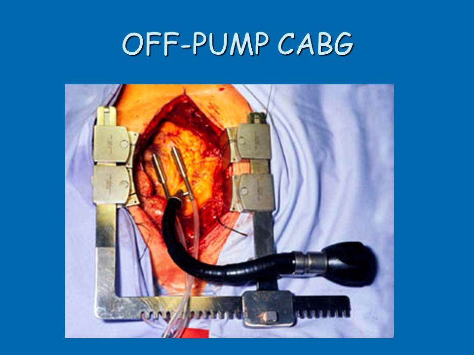 OFF-PUMP CABG