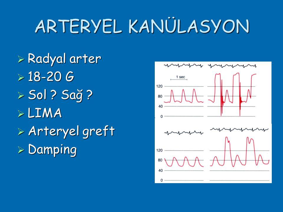ARTERYEL KANÜLASYON  Radyal arter  18-20 G  Sol ? Sağ ?  LIMA  Arteryel greft  Damping