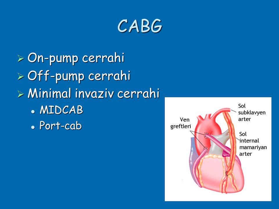 CABG  On-pump cerrahi  Off-pump cerrahi  Minimal invaziv cerrahi  MIDCAB  Port-cab