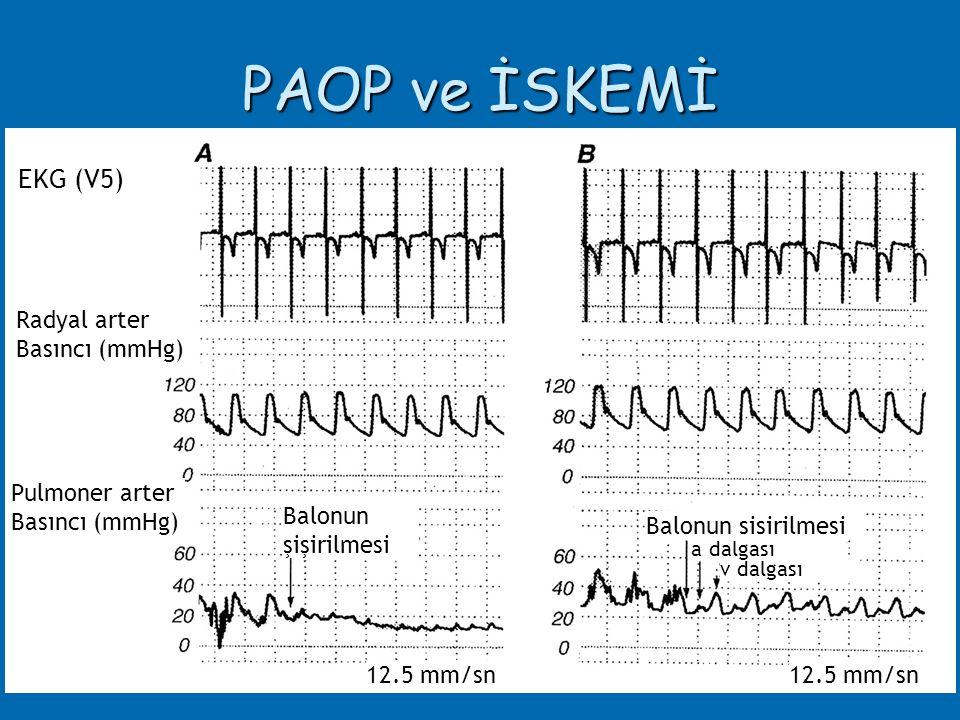 PAOP ve İSKEMİ EKG (V5) Radyal arter Basıncı (mmHg) Pulmoner arter Basıncı (mmHg) Balonun şişirilmesi v dalgası a dalgası 12.5 mm/sn