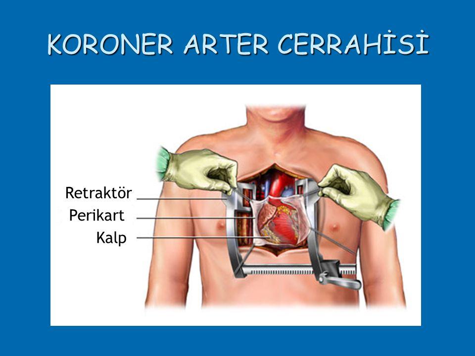 KORONER ARTER CERRAHİSİ Retraktör Perikart Kalp
