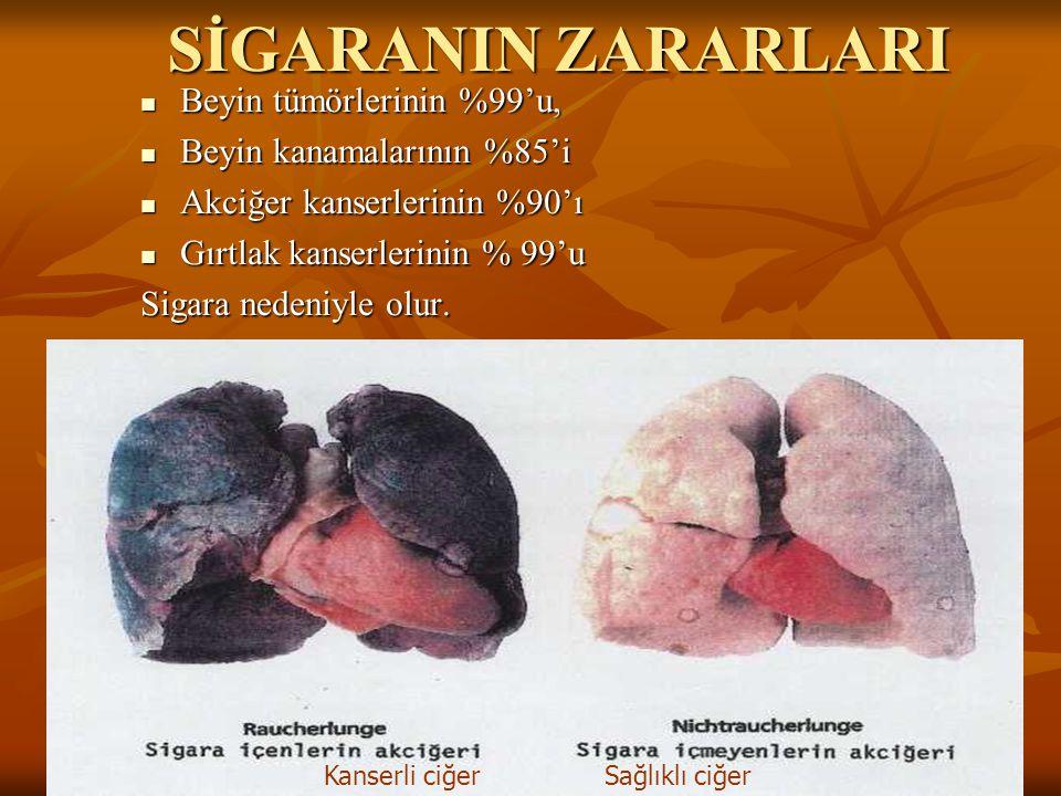 SİGARANIN ZARARLARI  Beyin tümörlerinin %99'u,  Beyin kanamalarının %85'i  Akciğer kanserlerinin %90'ı  Gırtlak kanserlerinin % 99'u Sigara nedeniyle olur.