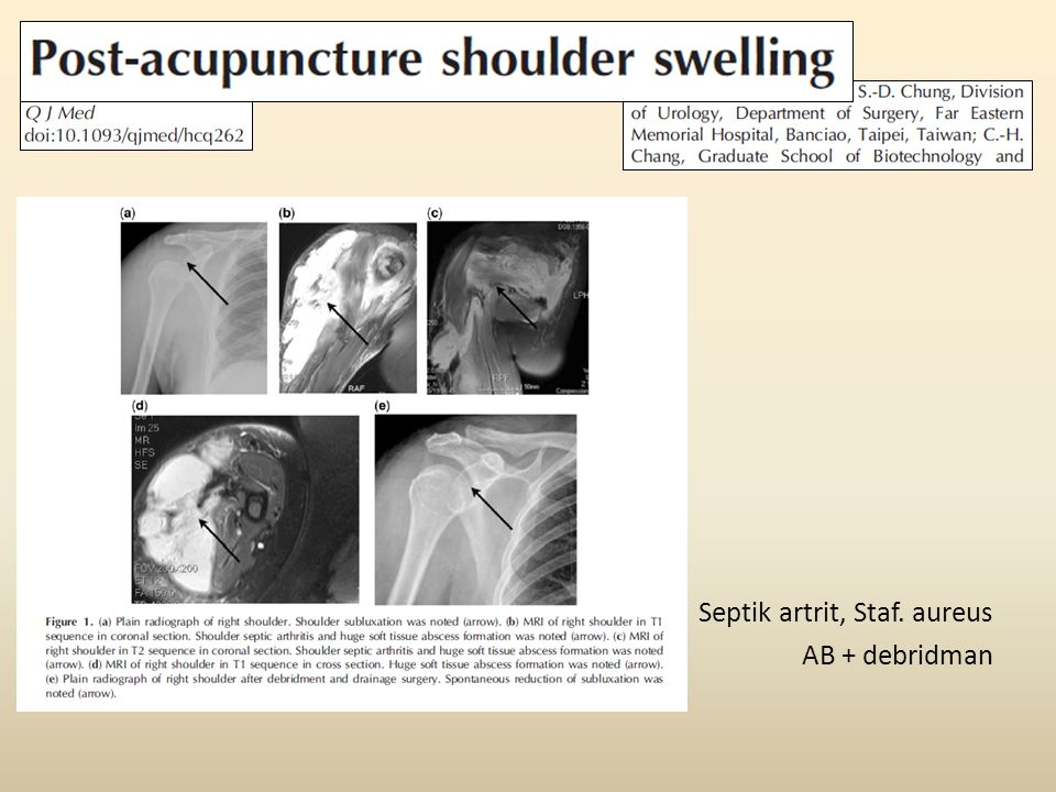 Septik artrit, Staf. aureus AB + debridman