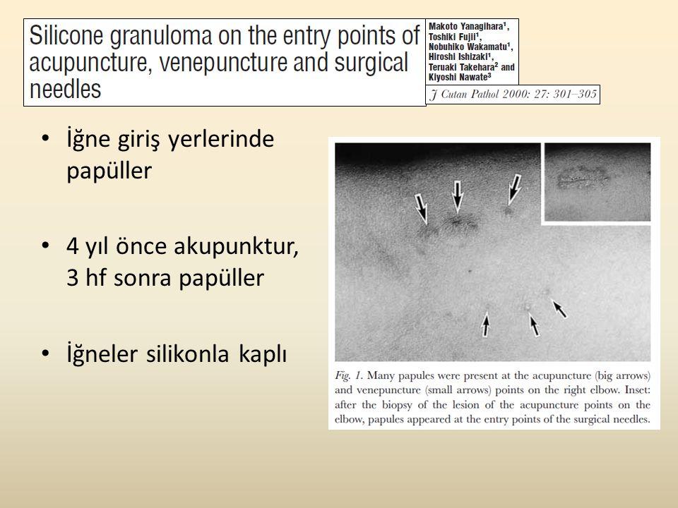 • İğne giriş yerlerinde papüller • 4 yıl önce akupunktur, 3 hf sonra papüller • İğneler silikonla kaplı