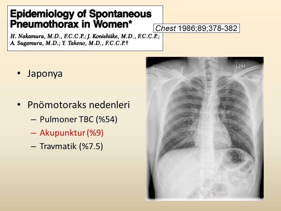 • Japonya • Pnömotoraks nedenleri – Pulmoner TBC (%54) – Akupunktur (%9) – Travmatik (%7.5)