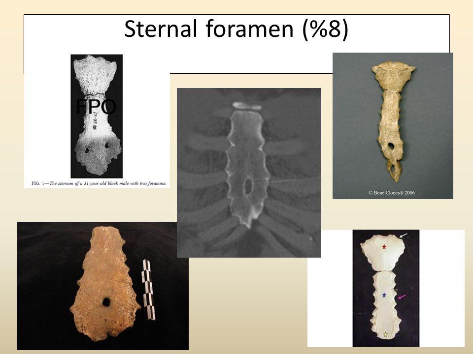 Sternal foramen (%8)
