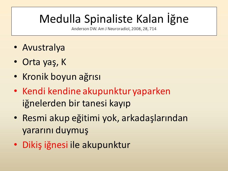 Medulla Spinaliste Kalan İğne Anderson DW. Am J Neuroradiol, 2008, 28, 714 • Avustralya • Orta yaş, K • Kronik boyun ağrısı • Kendi kendine akupunktur