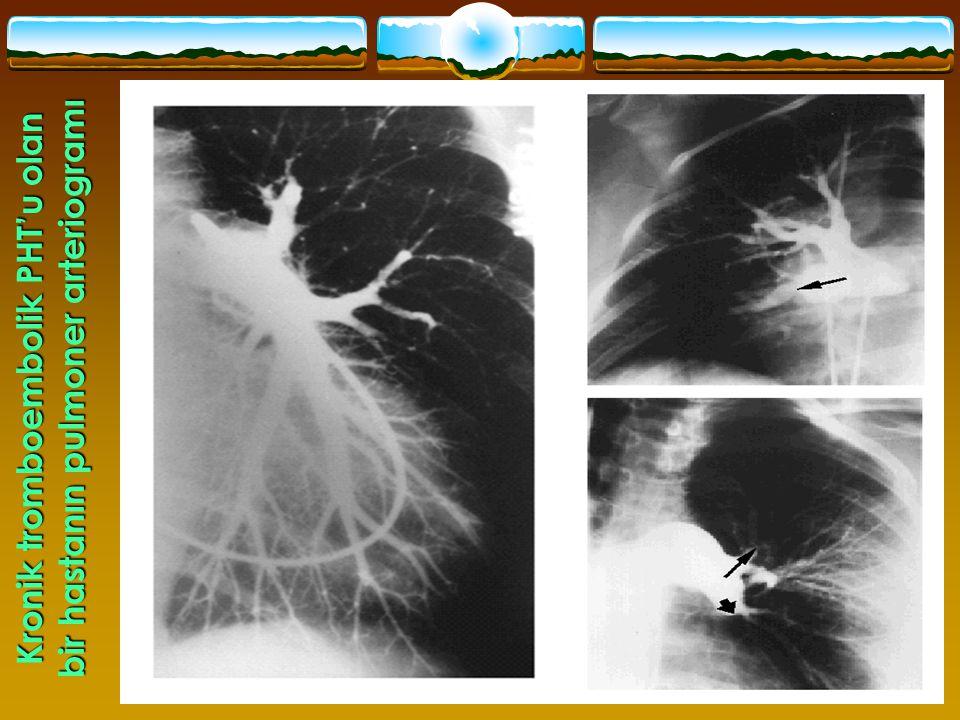 41 Kronik tromboembolik PHT'u olan bir hastanın pulmoner arteriogramı