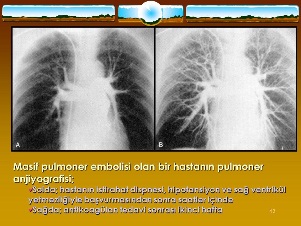 42 Masif pulmoner embolisi olan bir hastanın pulmoner anjiyografisi;  Solda; hastanın istirahat dispnesi, hipotansiyon ve sağ ventrikül yetmezliğiyle