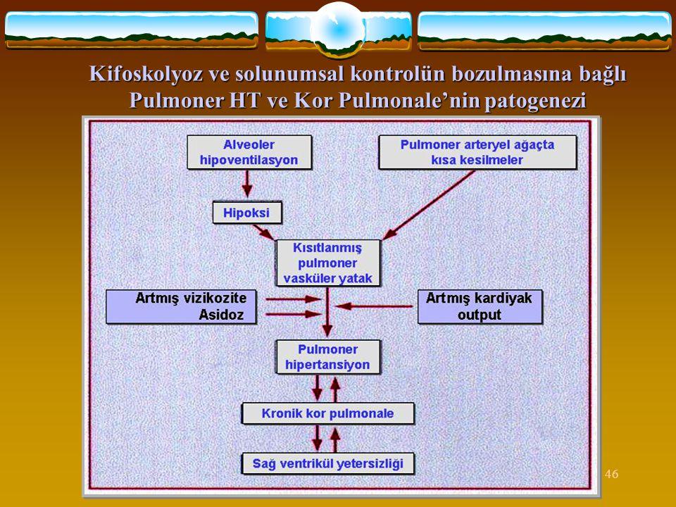 46 Kifoskolyoz ve solunumsal kontrolün bozulmasına bağlı Pulmoner HT ve Kor Pulmonale'nin patogenezi