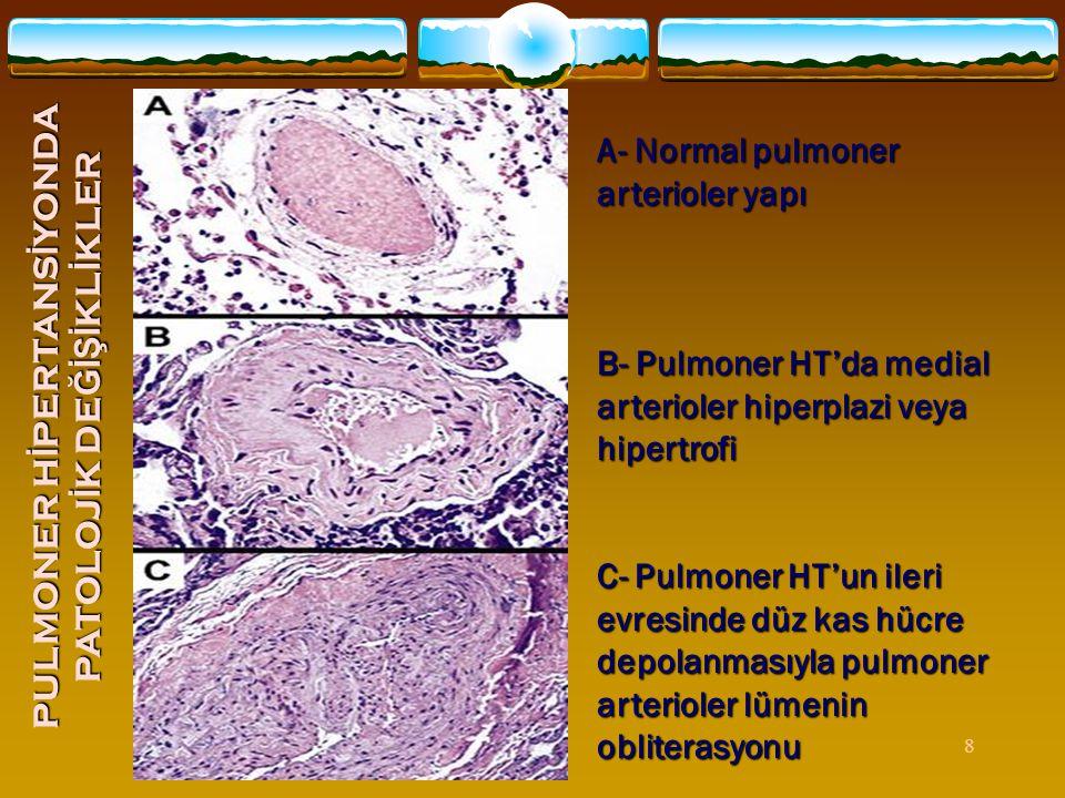 8 A- Normal pulmoner arterioler yapı B- Pulmoner HT'da medial arterioler hiperplazi veya hipertrofi C- Pulmoner HT'un ileri evresinde düz kas hücre de