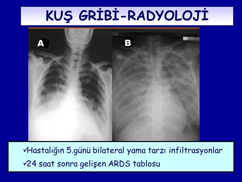 KUŞ GRİBİ-RADYOLOJİ  Hastalığın 5.günü bilateral yama tarzı infiltrasyonlar  24 saat sonra gelişen ARDS tablosu