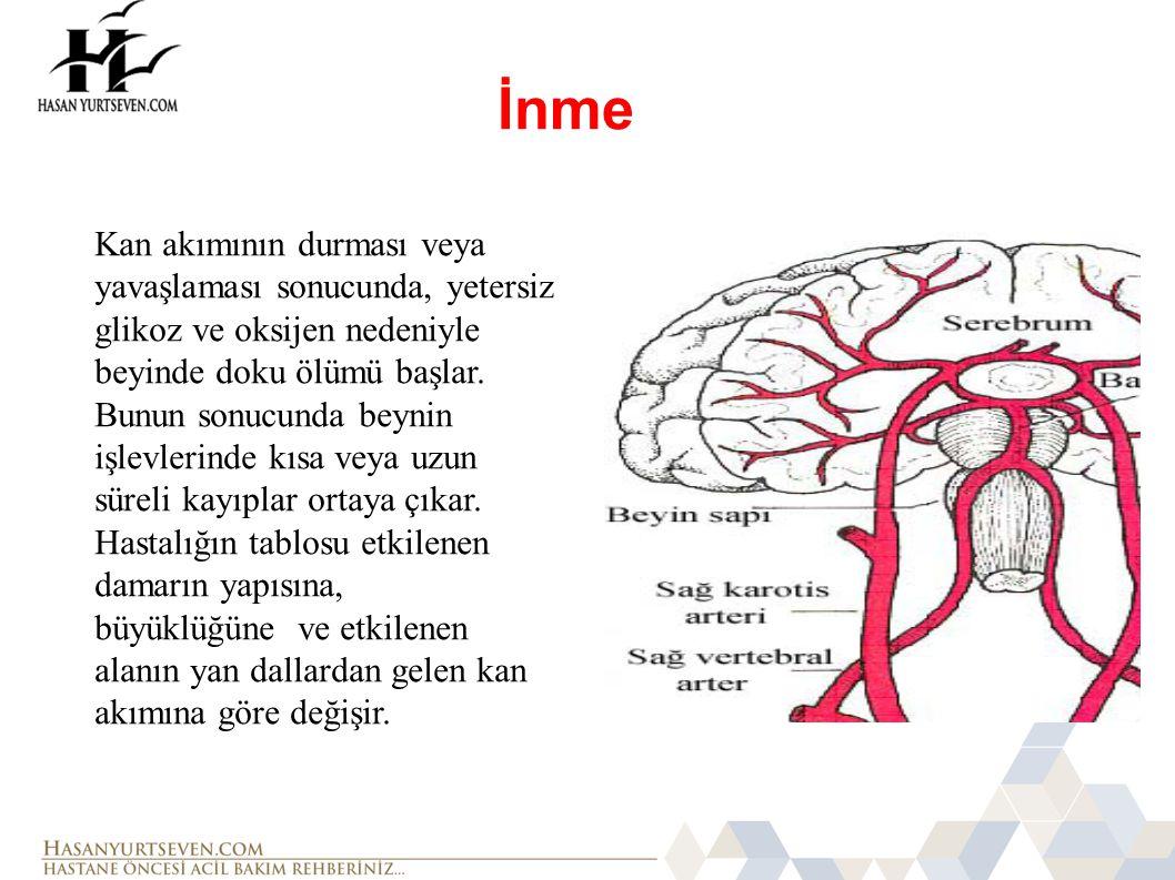 İnme Kan akımının durması veya yavaşlaması sonucunda, yetersiz glikoz ve oksijen nedeniyle beyinde doku ölümü başlar. Bunun sonucunda beynin işlevleri
