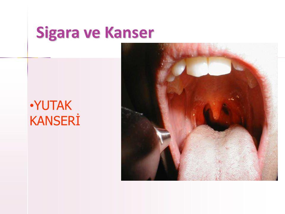Sigara ve Kanser  AĞIZ KANSERİ