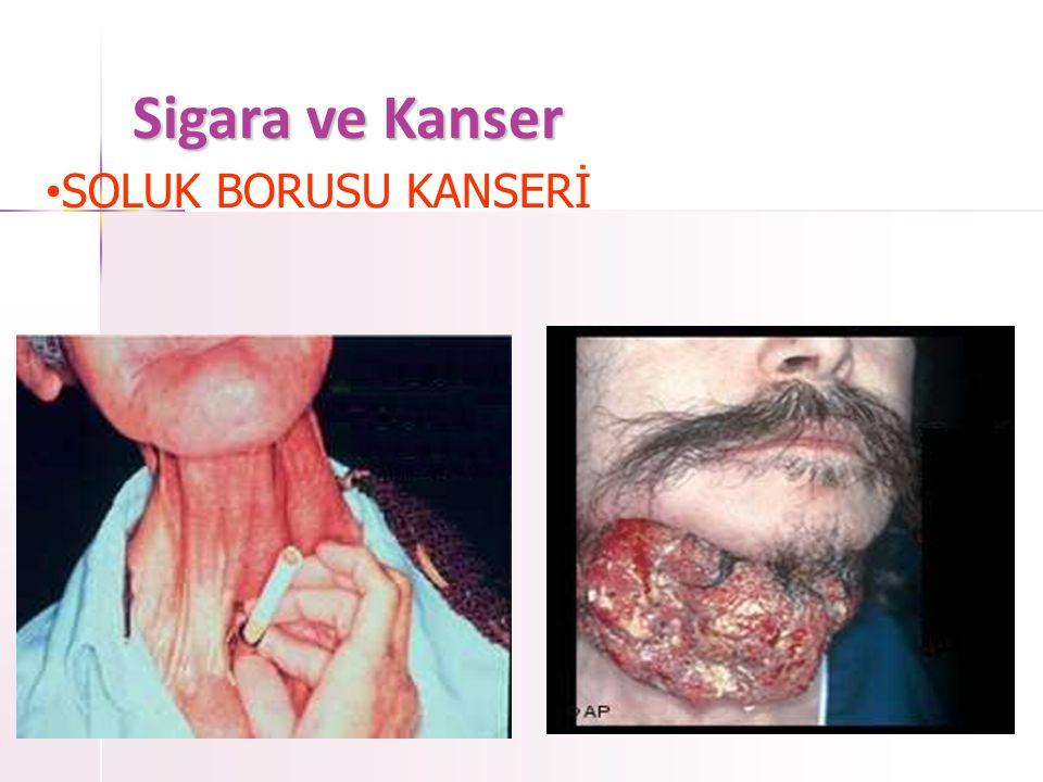 Sigara ve Kanser • YUTAK KANSERİ