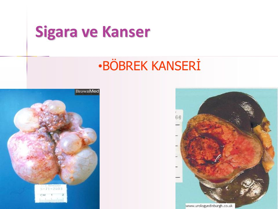 Sigara ve Kanser • PANKREAS KANSERİ