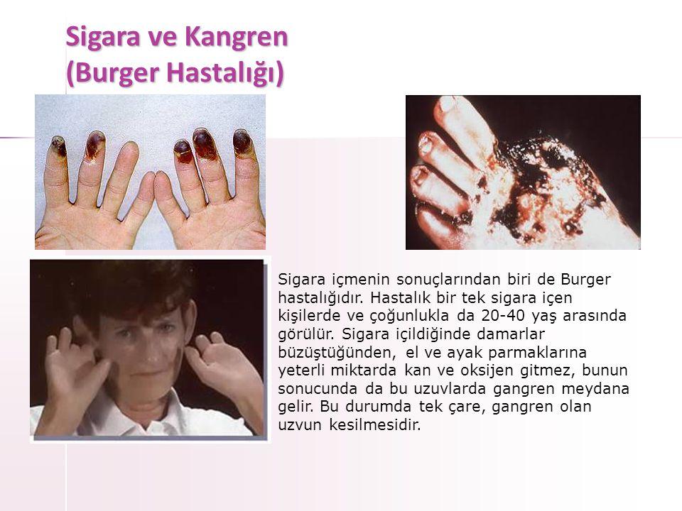 Sigara ve Kanser • MESANE KANSERİ