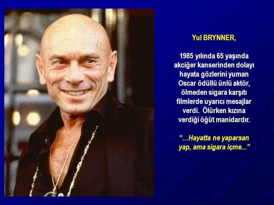 Yul BRYNNER, 1985 yılında 65 yaşında akciğer kanserinden dolayı hayata gözlerini yuman Oscar ödüllü ünlü aktör, ölmeden sigara karşıtı filmlerde uyarı