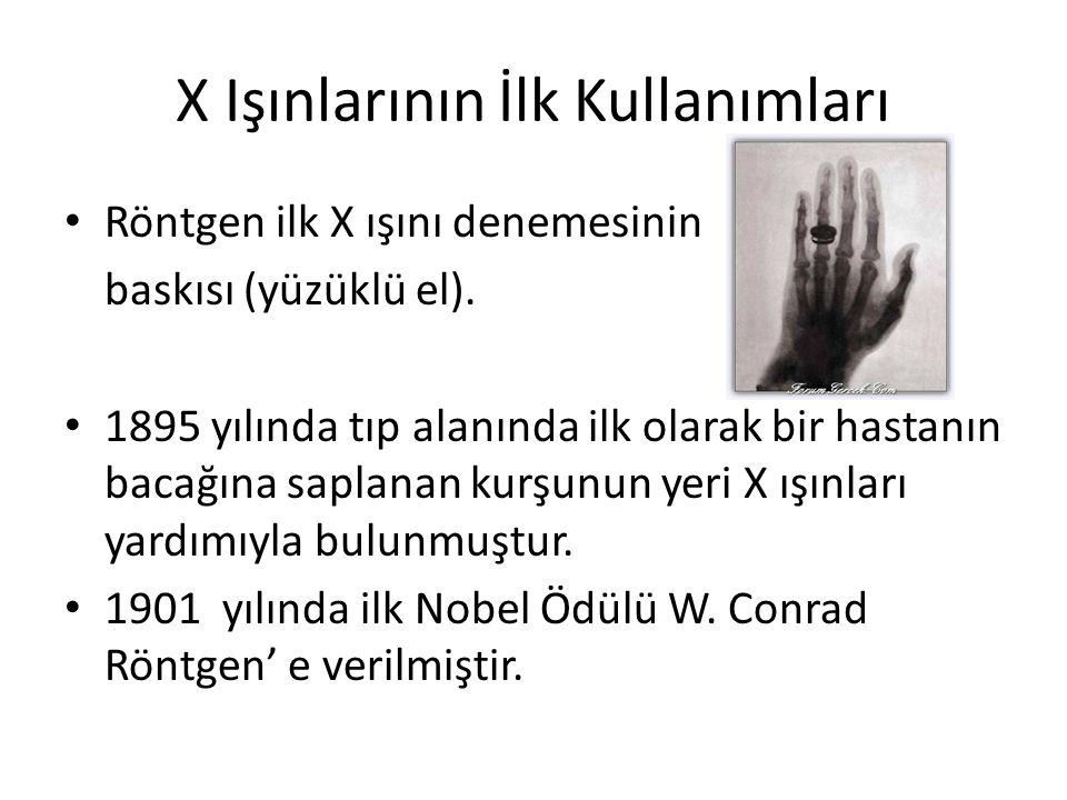 X Işınlarının İlk Kullanımları • Röntgen ilk X ışını denemesinin baskısı (yüzüklü el). • 1895 yılında tıp alanında ilk olarak bir hastanın bacağına sa