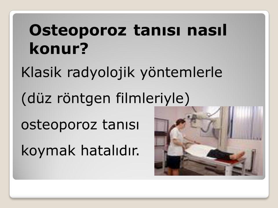 Osteoporoz tanısı nasıl konur? Klasik radyolojik yöntemlerle (düz röntgen filmleriyle) osteoporoz tanısı koymak hatalıdır.