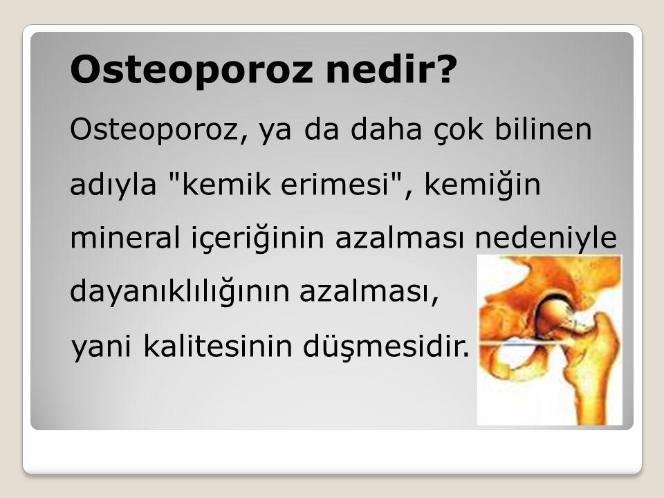 Osteoporoz nedir? Osteoporoz, ya da daha çok bilinen adıyla