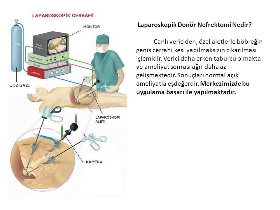 Laparoskopik Donör Nefrektomi Nedir? Canlı vericiden, özel aletlerle böbreğin geniş cerrahi kesi yapılmaksızın çıkarılması işlemidir. Verici daha erke