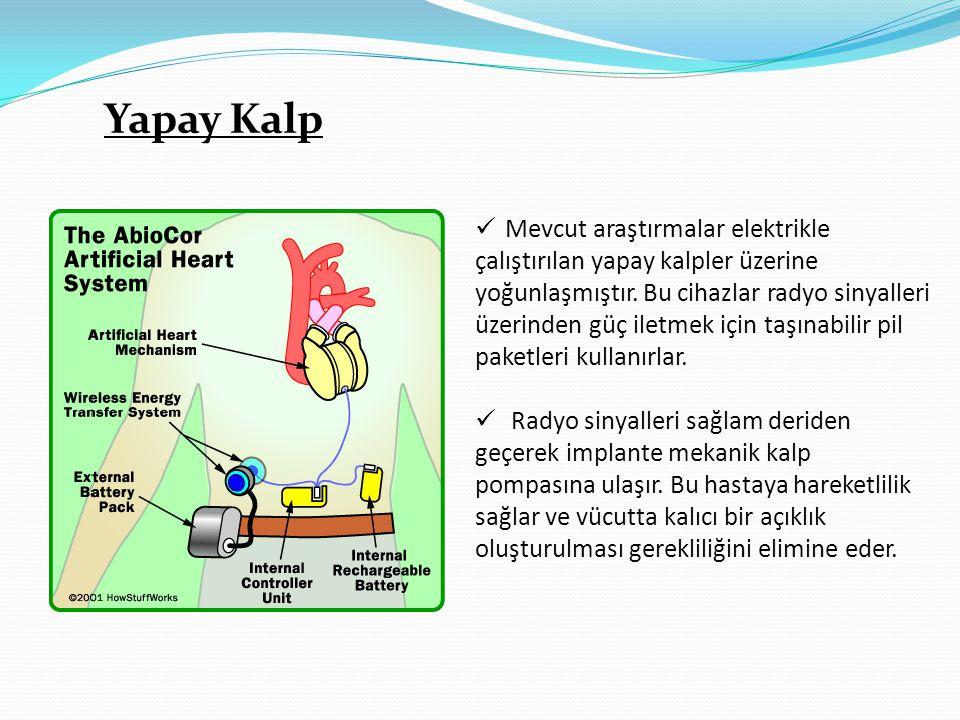 Yapay Kalp  Mevcut araştırmalar elektrikle çalıştırılan yapay kalpler üzerine yoğunlaşmıştır. Bu cihazlar radyo sinyalleri üzerinden güç iletmek için
