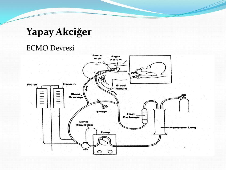 Yapay Akciğer ECMO Devresi