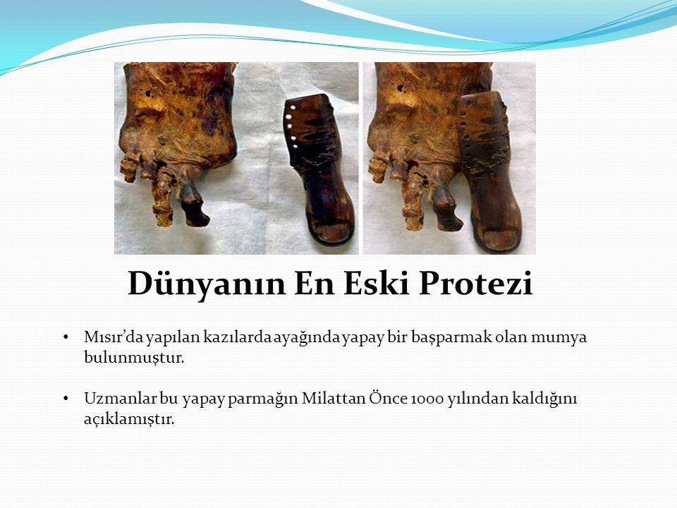 Dünyanın En Eski Protezi • Mısır'da yapılan kazılarda ayağında yapay bir başparmak olan mumya bulunmuştur. • Uzmanlar bu yapay parmağın Milattan Önce