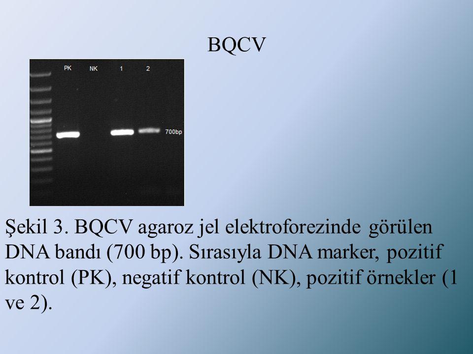 BQCV Şekil 3. BQCV agaroz jel elektroforezinde görülen DNA bandı (700 bp). Sırasıyla DNA marker, pozitif kontrol (PK), negatif kontrol (NK), pozitif ö
