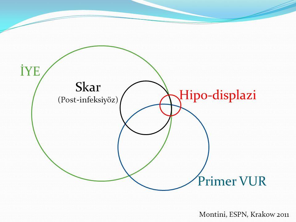 Primer VUR İYE Skar (Post-infeksiyöz) Hipo-displazi Montini, ESPN, Krakow 2011