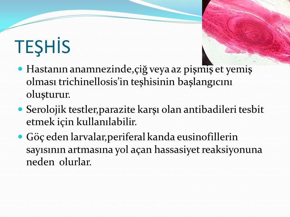 TEŞHİS  Hastanın anamnezinde,çiğ veya az pişmiş et yemiş olması trichinellosis'in teşhisinin başlangıcını oluşturur.  Serolojik testler,parazite kar