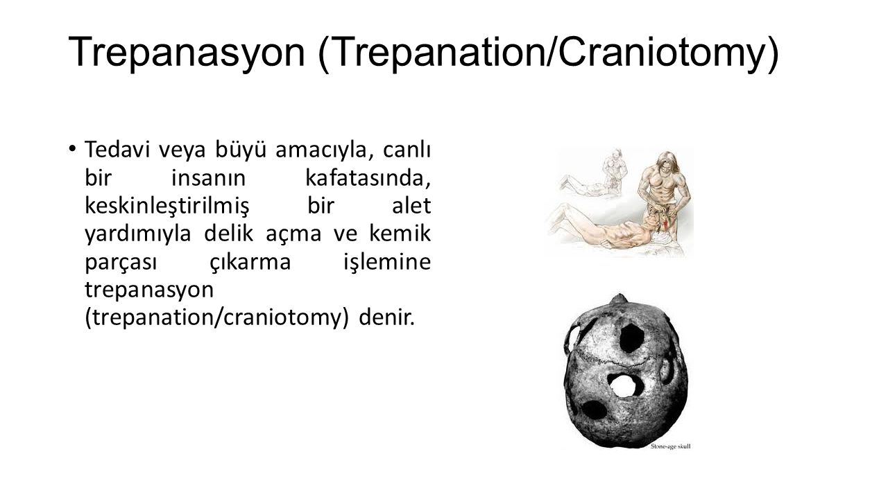 • Taş çağından (neolitik çağ) bugüne kadar gelen ve iyileşme belirtileri gösteren çok sayıda trepanasyonlu kafatası bulunmuştur •.