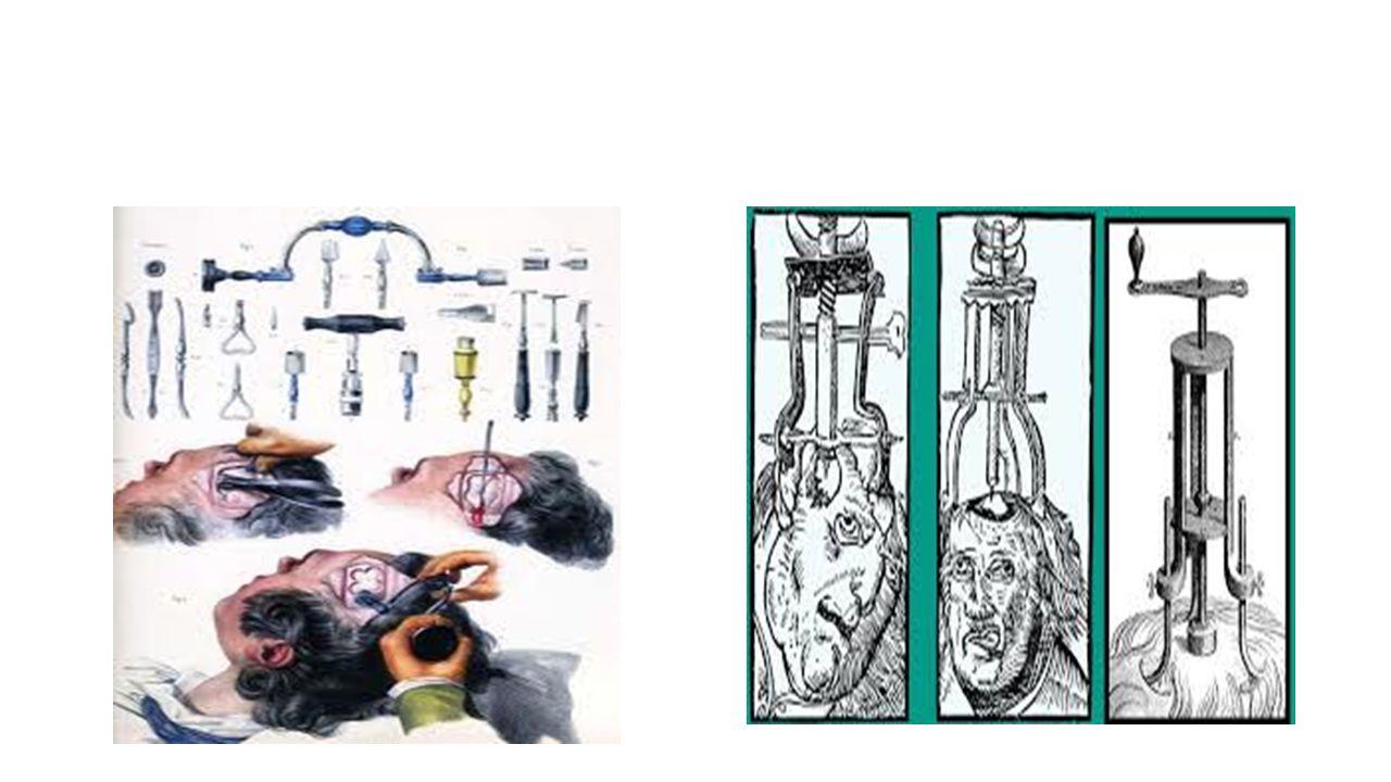 • Trepanasyona tabi tutulmuş kafataslarının incelenmesi sonucunda operasyonun 4 metotla yapıldığı tespit edilmiştir: 1.Kazıma: Kafatasının bir bölgesi, keskin bir aletle beyin zarına (duramater) kadar kazınır.