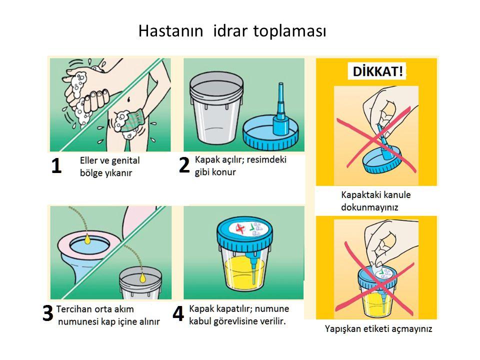 Hastanın idrar toplaması