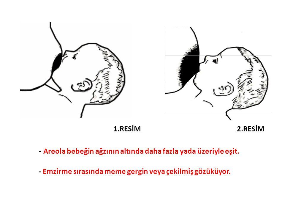 - Emzirme sırasında meme gergin veya çekilmiş gözüküyor. - Areola bebeğin ağzının altında daha fazla yada üzeriyle eşit. 1.RESİM 2.RESİM