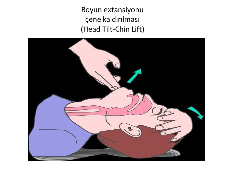 Boyun extansiyonu çene kaldırılması (Head Tilt-Chin Lift)