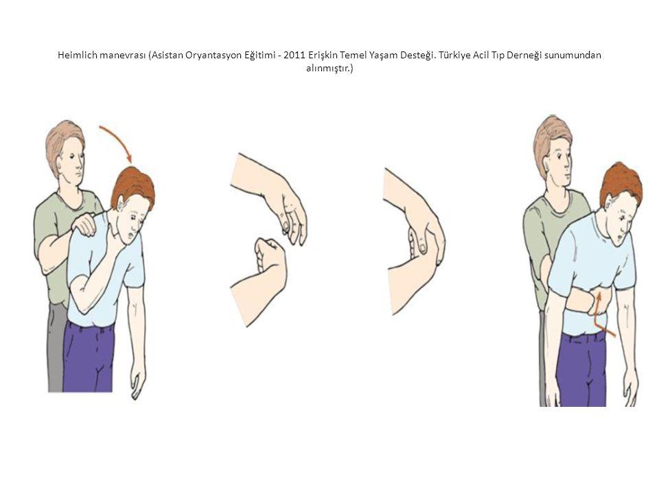 Heimlich manevrası (Asistan Oryantasyon Eğitimi - 2011 Erişkin Temel Yaşam Desteği. Türkiye Acil Tıp Derneği sunumundan alınmıştır.)