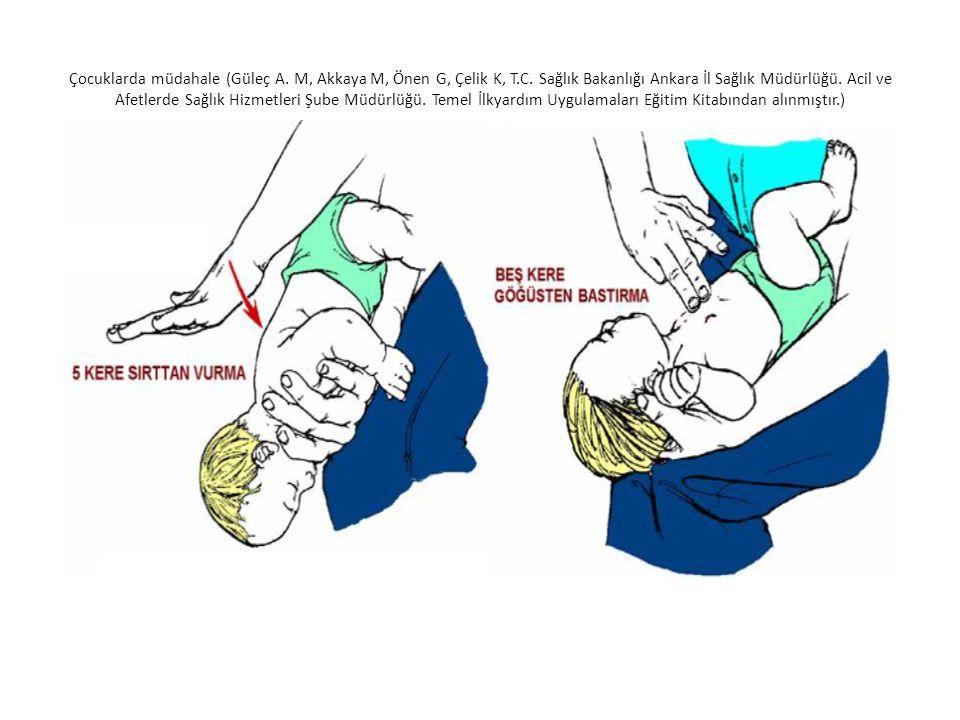 Çocuklarda müdahale (Güleç A. M, Akkaya M, Önen G, Çelik K, T.C. Sağlık Bakanlığı Ankara İl Sağlık Müdürlüğü. Acil ve Afetlerde Sağlık Hizmetleri Şube