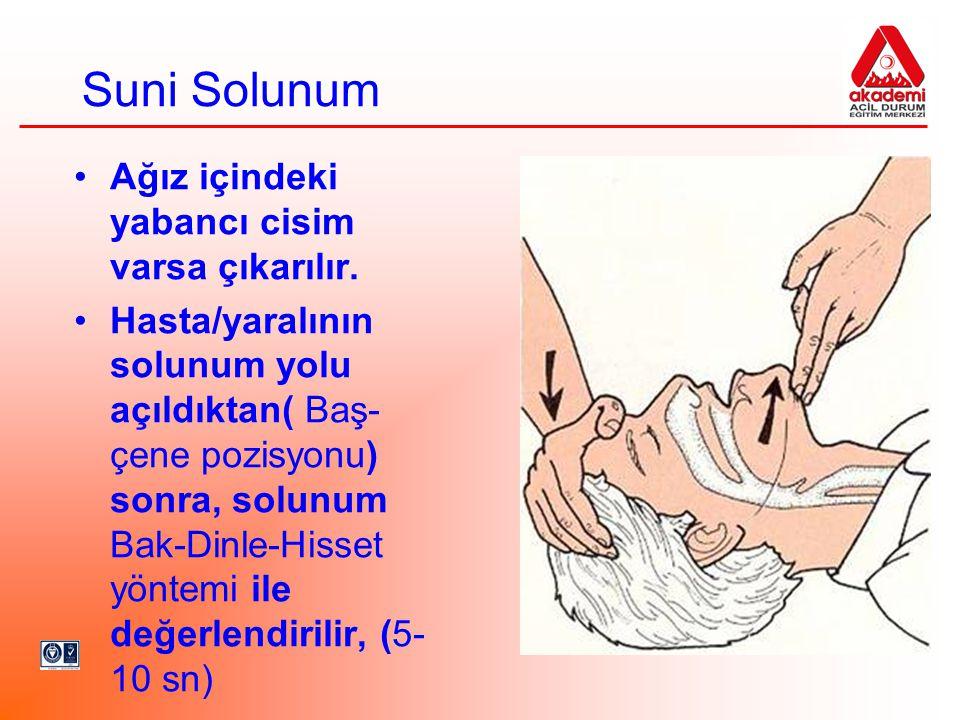 Suni Solunum •Ağız içindeki yabancı cisim varsa çıkarılır. •Hasta/yaralının solunum yolu açıldıktan( Baş- çene pozisyonu) sonra, solunum Bak-Dinle-His