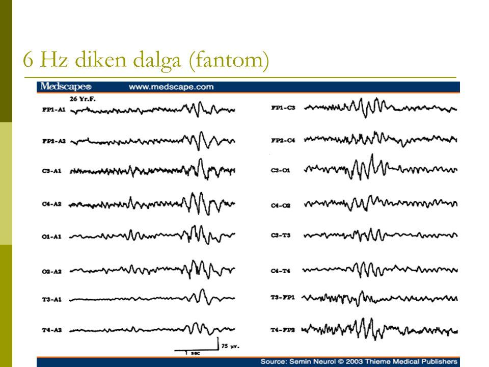 6 Hz diken dalga (fantom)