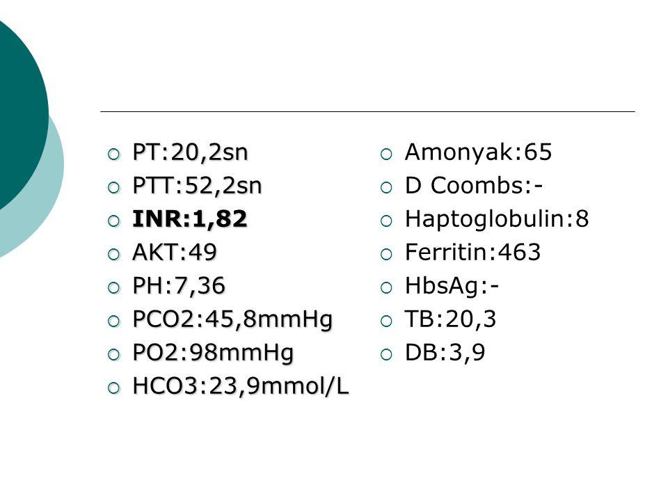  PT:20,2sn  PTT:52,2sn  INR:1,82  AKT:49  PH:7,36  PCO2:45,8mmHg  PO2:98mmHg  HCO3:23,9mmol/L  Amonyak:65  D Coombs:-  Haptoglobulin:8  Fe