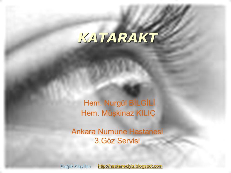 KATARAKT Katarakt; lensin (göz merceğinin) saydamlığının azalması, kesiflerin ortaya çıkmasıdır.