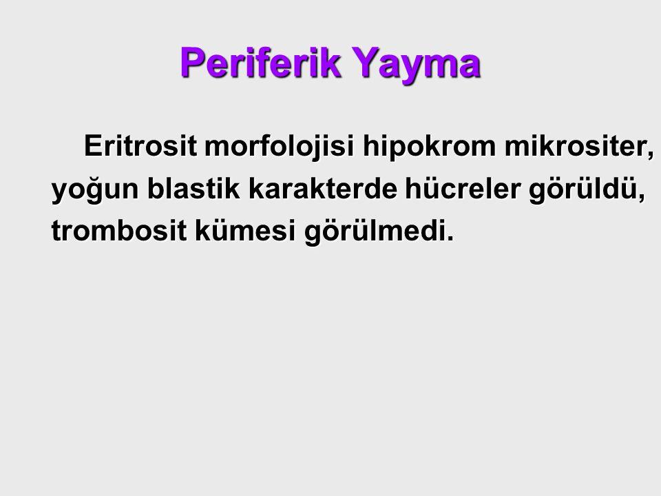 Periferik Yayma Eritrosit morfolojisi hipokrom mikrositer, Eritrosit morfolojisi hipokrom mikrositer, yoğun blastik karakterde hücreler görüldü, yoğun