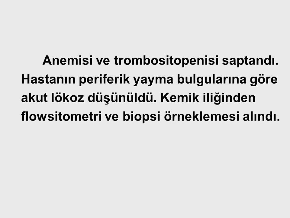 Anemisi ve trombositopenisi saptandı. Anemisi ve trombositopenisi saptandı. Hastanın periferik yayma bulgularına göre Hastanın periferik yayma bulgula