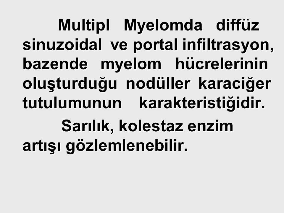 Multipl Myelomda diffüz sinuzoidal ve portal infiltrasyon, bazende myelom hücrelerinin oluşturduğu nodüller karaciğer tutulumunun karakteristiğidir. M