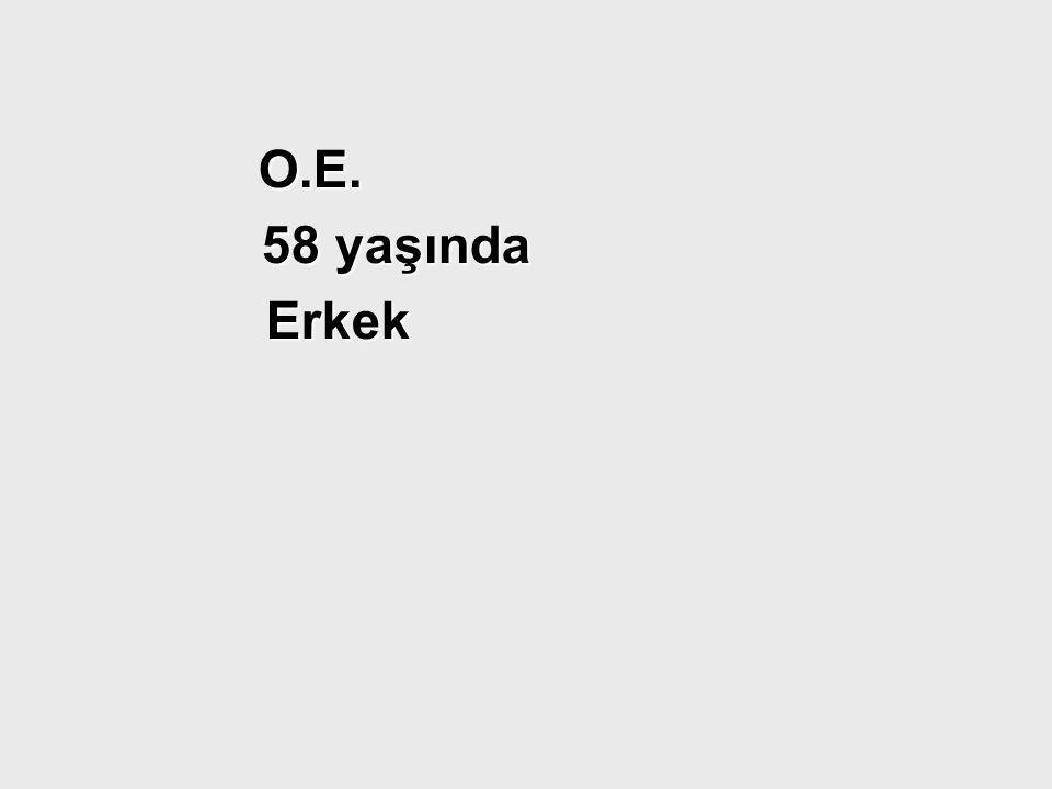 O.E. O.E. 58 yaşında 58 yaşında Erkek Erkek