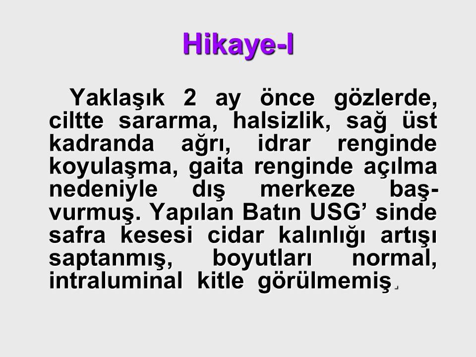 Hikaye-II AST:102 ALT:216 ALP:966 GGT:942 T.Bil:2.93 D.Bil:2.23 AST:102 ALT:216 ALP:966 GGT:942 T.Bil:2.93 D.Bil:2.23 Hepatit markerları negatif saptanmış.