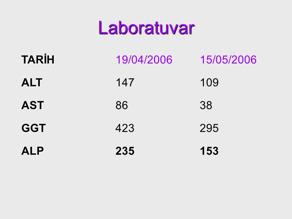 Laboratuvar TARİH19/04/200615/05/2006 ALT147109 AST8638 GGT423295 ALP235153